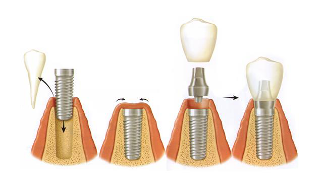 implant-stages